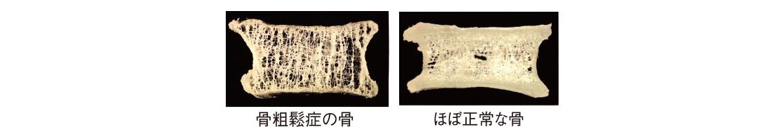 骨粗鬆症の骨、ほぼ正常な骨
