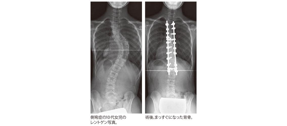 脊椎の側湾症ってどんな病気?