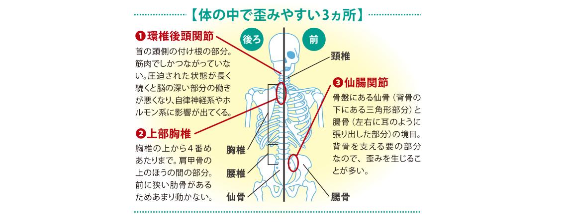 体の中で歪みやすい3か所